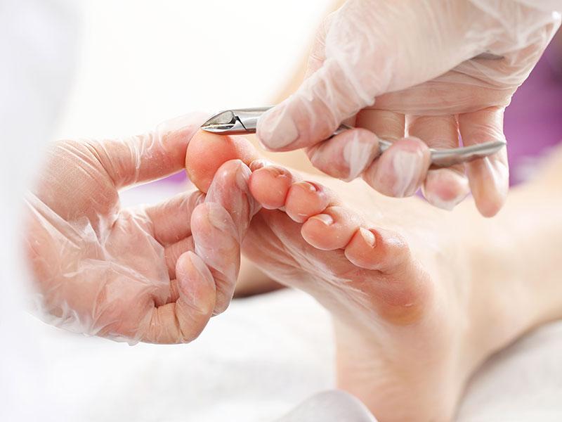 Randonnee Reumatische voetbehandeling